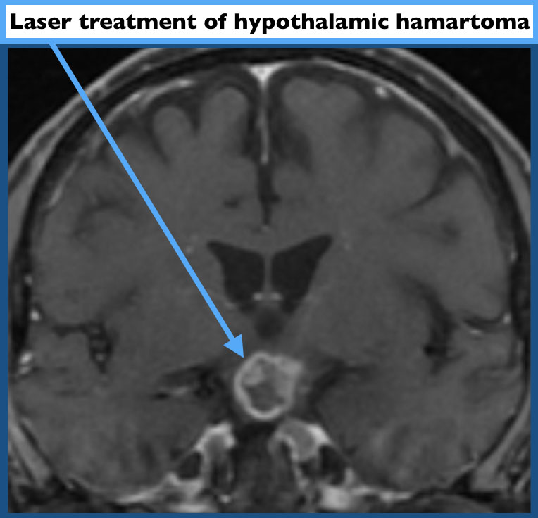 Laser treatment of hypothalamic harmartoma