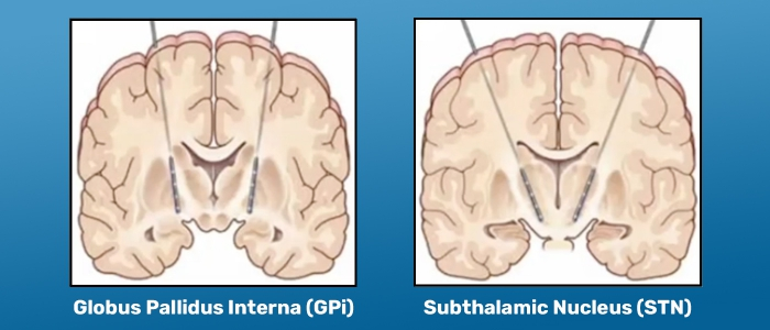 Learn about deep brain stimulation