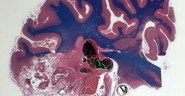 Neurosurgical Oncology Program